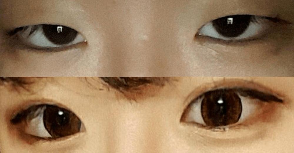 double-eyelids